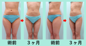 『全身整形!3回に分けて全身の脂肪吸引をしました!』の画像