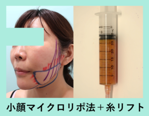 『これぞ究極のキツネライン!「小顔組み合わせ治療」』の画像