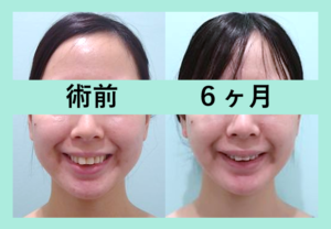 『ビフォーアフター3人分まとめてご紹介「小顔組み合わせ治療」』の画像