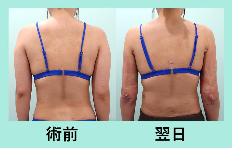 二の腕 肩 付け根 背中 脂肪吸引 ダウンタイム
