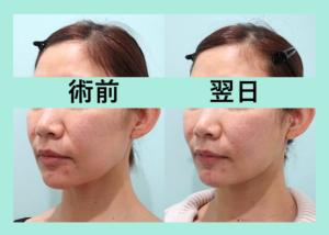 『顔の脂肪を移動させる!?究極の若返り「小顔組み合わせ治療」』の画像