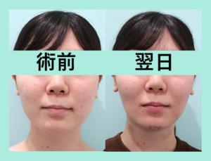 『3人分まとめて施術翌日の経過をご紹介「小顔組み合わせ治療」』の画像