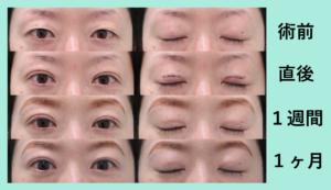 『目が開けやすくなります「二重埋没4点法」』の画像