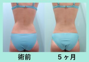『後ろ半身まとめて吸引「二の腕肩付け根+背中+腰の脂肪吸引」』の画像