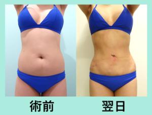 『翌日からナイスバディに!「腹部全体胸下の脂肪吸引」』の画像
