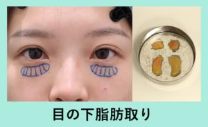 『目の下脂肪取りで超可愛くなりました!「クマ治療」』の画像
