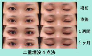 『左右差のある目は難しい「二重埋没4点法」』の画像