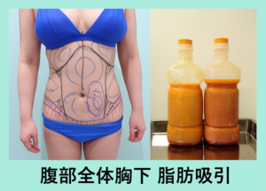『翌日ぺったんこ!「腹部全体の脂肪吸引」』の画像