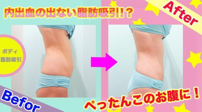 脂肪吸引 ビフォーアフター