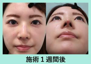『芸術的な鼻を作る!「鼻の複合施術」』の画像