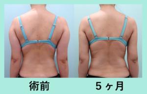 『どの角度から見ても綺麗に仕上げる「二の腕肩付け根の脂肪吸引」』の画像