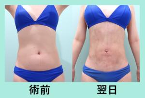 『広範囲の脂肪吸引でも内出血なし!!「腹部全体と腰の脂肪吸引」』の画像