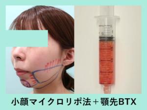 『施術翌日の経過3人まとめてご紹介「小顔マイクロリポ法」』の画像
