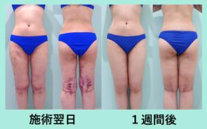 『匠によるダウンタイム最小のベイザー脂肪吸引「太もも全周+腰の脂肪吸引」』の画像
