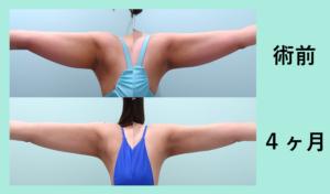 『感動的な仕上がり!ダイエットも頑張りました♪「二の腕肩付け根の脂肪吸引」』の画像