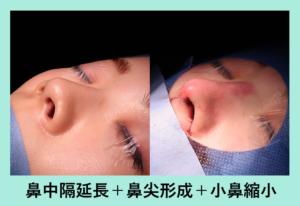 『施術直後の形「鼻の複合施術」』の画像