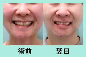 『超レアな脂肪吸引「顎先の脂肪吸引」』の画像