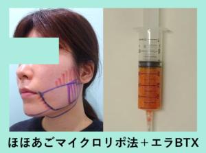 『ビフォーアフター3人分まとめてご紹介「小顔マイクロリポ法」』の画像