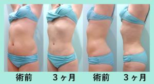 『変化が凄すぎる!!「腹部全体胸下+背中+腰の脂肪吸引」』の画像