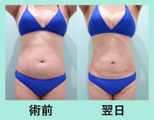 『翌日激変!内出血ほとんどなし!「腹部の脂肪吸引」』の画像