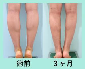 『難易度の高いふくらはぎもバッチリ決めます!「下腿足首の脂肪吸引+ふくらはぎBTX」』の画像