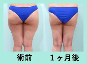 『衝撃の5L超え!吸引量MAXレベル!!「太もも全周+下臀の脂肪吸引」』の画像