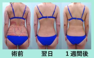 『「上半身全部!!」超広範囲吸引しても内出血ほぼなし!?「腹部全体+腰+二の腕肩付け根の脂肪吸引」』の画像