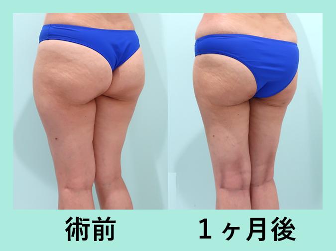 脂肪吸引 ダウンタイム