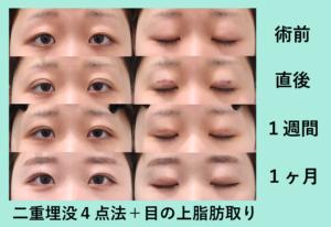 『目と眉毛の距離が狭くなる「二重組み合わせ治療」』の画像