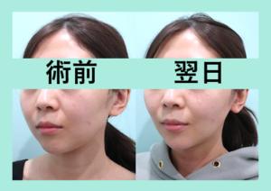 『3人分まとめて経過お見せします。施術翌日の腫れが最小限です「小顔マイクロリポ法」』の画像