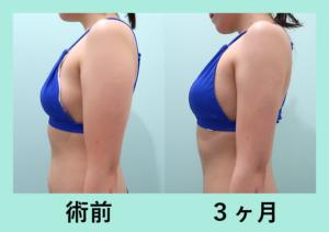 『難易度の高い広範囲オペでもハイレベルな結果を出します「腹部全体+二の腕肩付け根 脂肪吸引+コンデンスリッチ豊胸」』の画像
