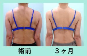 『ビューティフル!「二の腕肩付け根の脂肪吸引」』の画像