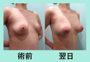 『翌日の変化が凄すぎる!?「腹部全体腰の脂肪吸引+コンデンスリッチ豊胸」』の画像