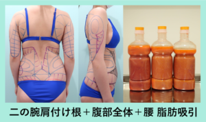 『上半身全部!広範囲でもバッチリ決めます「二の腕肩付け根+腹部全体+腰の脂肪吸引」』の画像