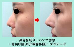 『高難度!他院の鼻術後の修正+骨切り幅寄せの複合手術』の画像