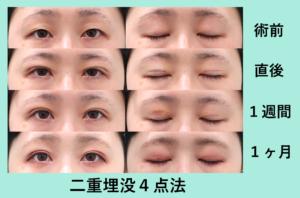 『お化粧が楽しくなる♪「二重埋没4点法」』の画像