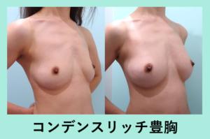 『授乳後の下垂気味の胸に最適です「コンデンスリッチ豊胸」』の画像