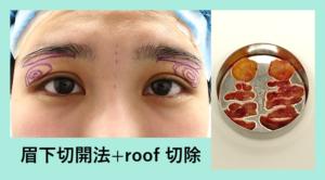『まぶたをゴッソリ軽くする!傷跡もほぼ消えちゃう「眉下皮膚切除 + ROOF 切除」』の画像