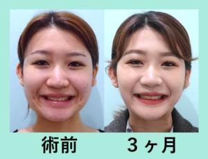 『脂肪吸引すごし!!3人分まとめてビフォーアフター「小顔マイクロリポ法」』の画像