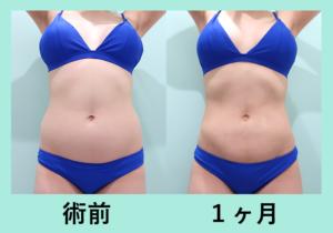 『広範囲でも内出血ほぼなし!「腹部全体+腰 の脂肪吸引」』の画像