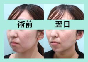 『WOMでしか受けられない超複雑な「小顔組み合わせ治療」』の画像