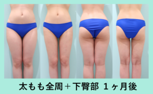 『内出血ほぼなし!芸術性を追求「太もも全周+下臀 脂肪吸引+ふくらはぎBTX」』の画像