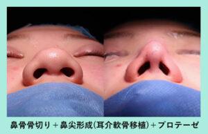『「大きな鼻」を、基本の手術でしっかり小さくします!』の画像