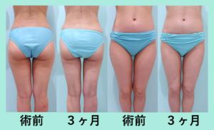 『ナチュラルに美しく細くする「太もも全周+下臀部の脂肪吸引」』の画像