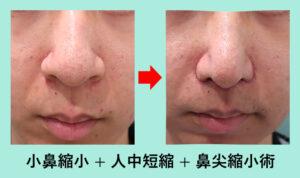 『「大きな鼻」を小さくしたい!』の画像
