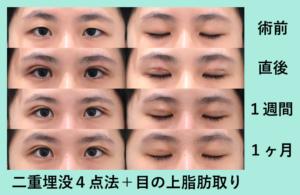 『クリッとした目に「二重組み合わせ治療」』の画像