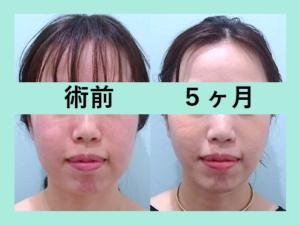 『ビフォーアフター3人まとめてご紹介、控え目に加減してナチュラルな仕上がりに「小顔組み合わせ治療」』の画像