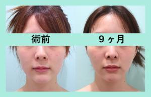 『リピーター続出、ハマりすぎにご注意ください「小顔組み合わせ治療」』の画像