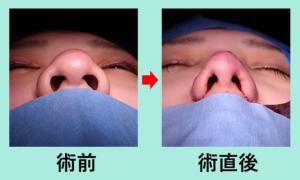 『大きなニンニク鼻を、なるべく自然な感じで小さくしたい!』の画像
