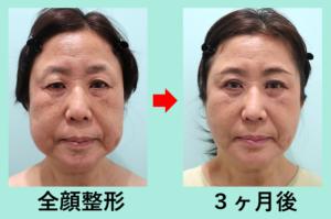 『超変化! 美容整形で時空を超えます!「全顔整形」』の画像